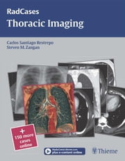Thoracic Imaging ebook by Steven Zangan,Carlos S Restrepo