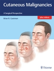 Cutaneous Malignancies - A Surgical Perspective ebook by Brian Gastman