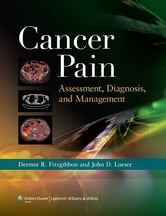 Cancer Pain ebook by Dermot R. Fitzgibbon,John D. Loeser