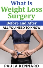 What Is Weight Loss Surgery: All You Need To Know Before And After ebook by Paula Kennard