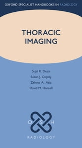 Thoracic Imaging ebook by Sujal R. Desai,Susan J. Copley,Zelena A. Aziz,David M. Hansell