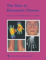 The Skin in Rheumatic Disease ebook by C. R. Lovell,G. V. Campion,P. J. Maddison