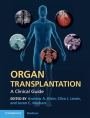Organ Transplantation - A Clinical Guide ebook by Andrew A. Klein,Clive J. Lewis,Joren C. Madsen