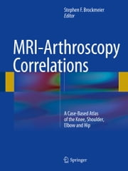 MRI-Arthroscopy Correlations - A Case-Based Atlas of the Knee, Shoulder, Elbow and Hip ebook by Stephen F. Brockmeier