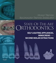 State-of-the-Art Orthodontics - Self-Ligating Appliances, Miniscrews and Second Molars Extraction ebook by Hugo Trevisi,Reginaldo C. Trevisi Zanelato