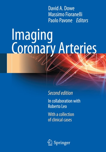 Imaging Coronary Arteries ebook by