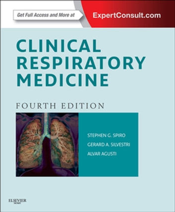 Clinical respiratory medicine e book ebook di stephen g spiro bsc clinical respiratory medicine e book expert consult online and print ebook by stephen fandeluxe Image collections
