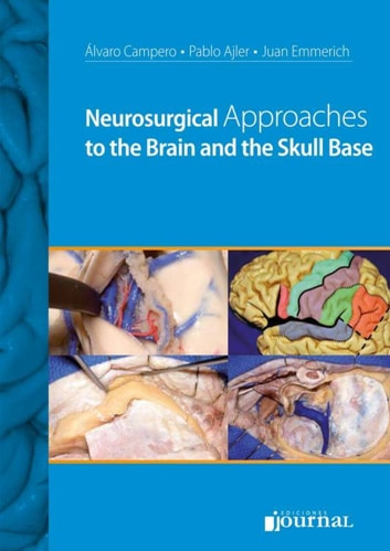 Neurosurgical Approaches to the Brain and the Skull Base ebook by Álvaro Campero,Pablo Ajler,Juan Emmerich