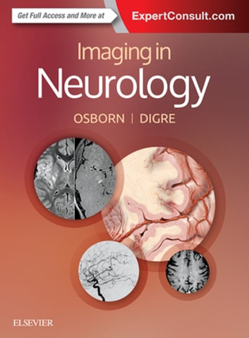 Imaging in Neurology E-Book ebook by Anne G. Osborn, MD, FACR,Kathleen B. Digre, MD