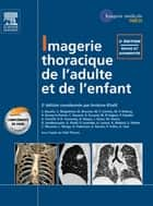 Imagerie thoracique de l'enfant et de l'adulte ebook by Antoine Khalil, Anne-Christel Rolling, Cécile FOULLON,...