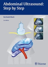 Abdominal Ultrasound: Step by Step ebook by Berthold Block