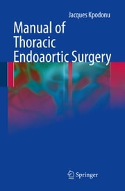 Manual of Thoracic Endoaortic Surgery ebook by Jacques Kpodonu