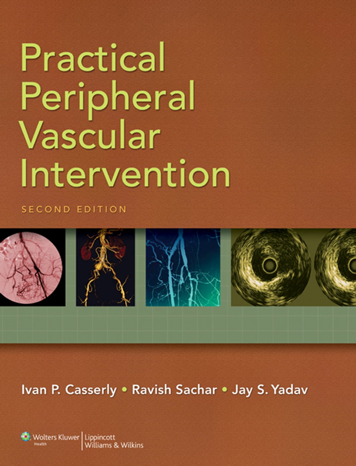 Guide to Peripheral and Cerebrovascular Intervention