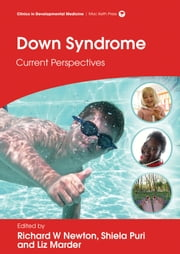 Down Syndrome: Current Perspectives ebook by Richard W Newton,Liz Marder,Shiela C Puri