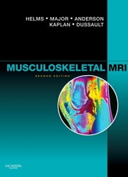 Musculoskeletal MRI E-Book ebook by Clyde A. Helms, MD, Nancy M. Major,...