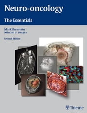 Neuro-Oncology: The Essentials - The Essentials ebook by Mark Bernstein,Mitchel S. Berger
