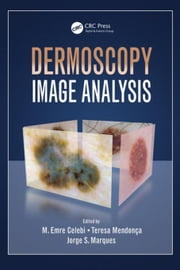 Dermoscopy Image Analysis ebook by Celebi, M. Emre