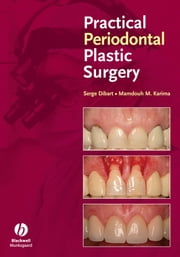 Practical Periodontal Plastic Surgery ebook by Serge Dibart,Mamdouh Karima