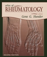 Atlas of Rheumatology ebook by Gene Hunder