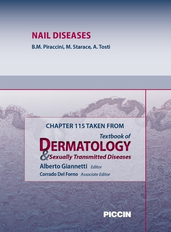 Chapter 115 Taken from Textbook of Dermatology & Sexually Trasmitted Diseases - NAIL DISEASES ebook by A.Giannetti,B.M. Piraccini,M. Starace