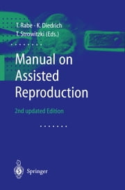 Manual on Assisted Reproduction ebook by T. Rabe,K. Dietrich,Thomas Strowitzki