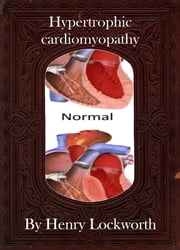 Hypertrophic cardiomyopathy ebook by Henry Lockworth,Lucy Mcgreggor,John Hawk