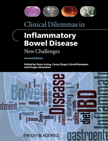 Clinical Dilemmas in Inflammatory Bowel Disease - New Challenges ebook by