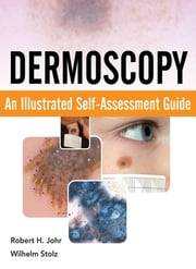 Dermoscopy: An Illustrated Self-Assessment Guide - An Illustrated Self-Assessment Guide ebook by Robert Johr,Wilhelm Stolz