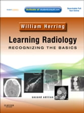 Learning Radiology: Recognizing the Basics ebook by William Herring