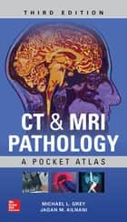 CT & MRI Pathology: A Pocket Atlas, Third Edition ebook by Michael L Grey, Jagan Mohan Ailinani