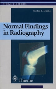 Normal Findings in Radiography ebook by Torsten Bert Moeller