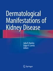 Dermatological Manifestations of Kidney Disease ebook by Julia R. Nunley,Edgar V. Lerma