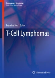T-Cell Lymphomas ebook by Francine Foss
