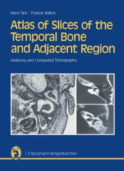 Atlas of Slices of the Temporal Bone and Adjacent Region - Anatomy and Computed Tomography Horizontal, Frontal, Sagittal Sections ebook by Henri Sick,Francis Veillon