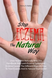 Stop Eczema The Natural Way - Clear Your Skin Naturally With This Handbook And Learn Eczema Symptoms, Eczema Causes, The Different Ways On How To Treat Eczema And Its Natural Treatments! ebook by Henry A. Bailey