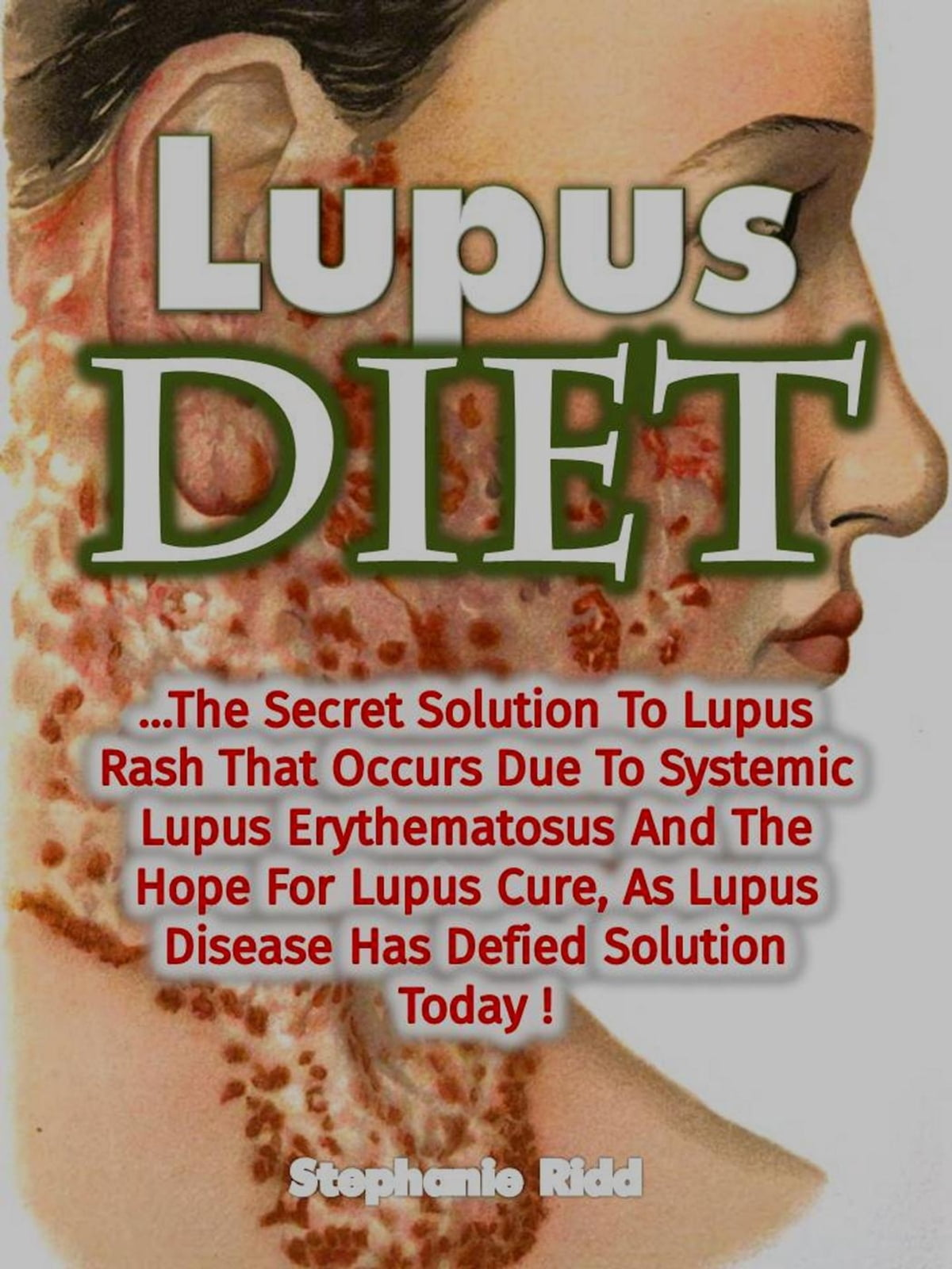 Lupus Diet: The Secret Solution To Lupus Rash That Occurs Due To Systemic  Lupus Erythematosus And The Hope For Lupus Cure, As Lupus Disease Has  Defied