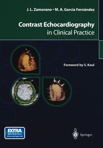 Contrast Echocardiography in Clinical Practice