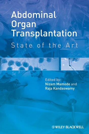 Abdominal Organ Transplantation - State of the Art ebook by