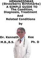 Hemangiomas, A Simple Guide To The Condition, Diagnosis, Treatment And Related Conditions ebook by Kenneth Kee
