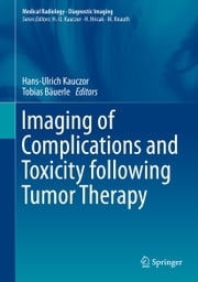 Imaging of Complications and Toxicity following Tumor Therapy ebook by Hans-Ulrich Kauczor,Tobias Bäuerle