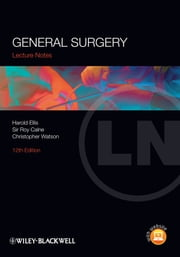 Lecture Notes: General Surgery ebook by Harold Ellis,Sir Roy Calne,Christopher Watson