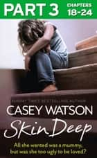 Skin Deep: Part 3 of 3: All she wanted was a mummy, but was she too ugly to be loved? ebook by Casey Watson