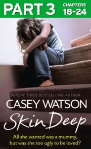 Skin Deep: Part 3 of 3: All she wanted was a mummy, but was she too ugly to be loved? 電子書 by Casey Watson