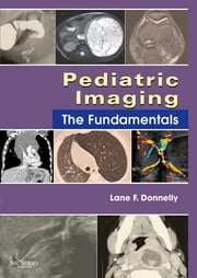 Pediatric Imaging - The Fundamentals ebook by Lane F. Donnelly