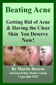 Beating Acne: Getting Rid of Acne & Having the Skin You Deserve Now! ebook by Advanced Buy Media Group