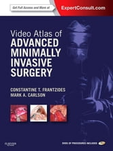 Video Atlas of Advanced Minimally Invasive Surgery - Expert Consult - Online ebook by Constantine T. Frantzides,Mark A. Carlson