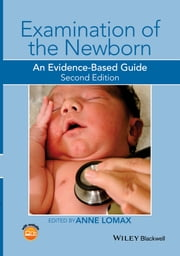 Examination of the Newborn - An Evidence-Based Guide ebook by Anne Lomax