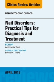 Nail Disorders: Practical Tips for Diagnosis and Treatment, An Issue of Dermatologic Clinics ebook by Antonella Tosti, MD