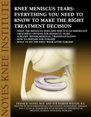 Knee Meniscus (Cartilage) Tears: Everything You Need to Know to Make the Right Treatment Decision - - What the meniscus does and why it is so important - Treatment options for meniscus tears - Surgery: repair, removal, transplantation - How to prepare for surgery - What to do the first week after surgery ebook by Sue Barber-Westin,Dr. Frank Noyes