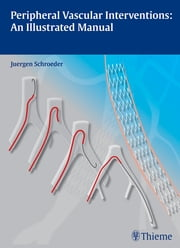 Peripheral Vascular Interventions: An Illustrated Manual ebook by Juergen Schroeder